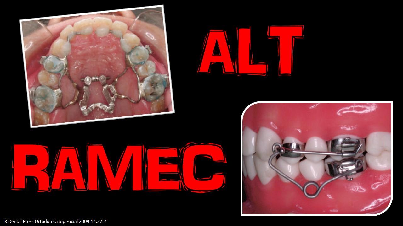 ALTRAMEC