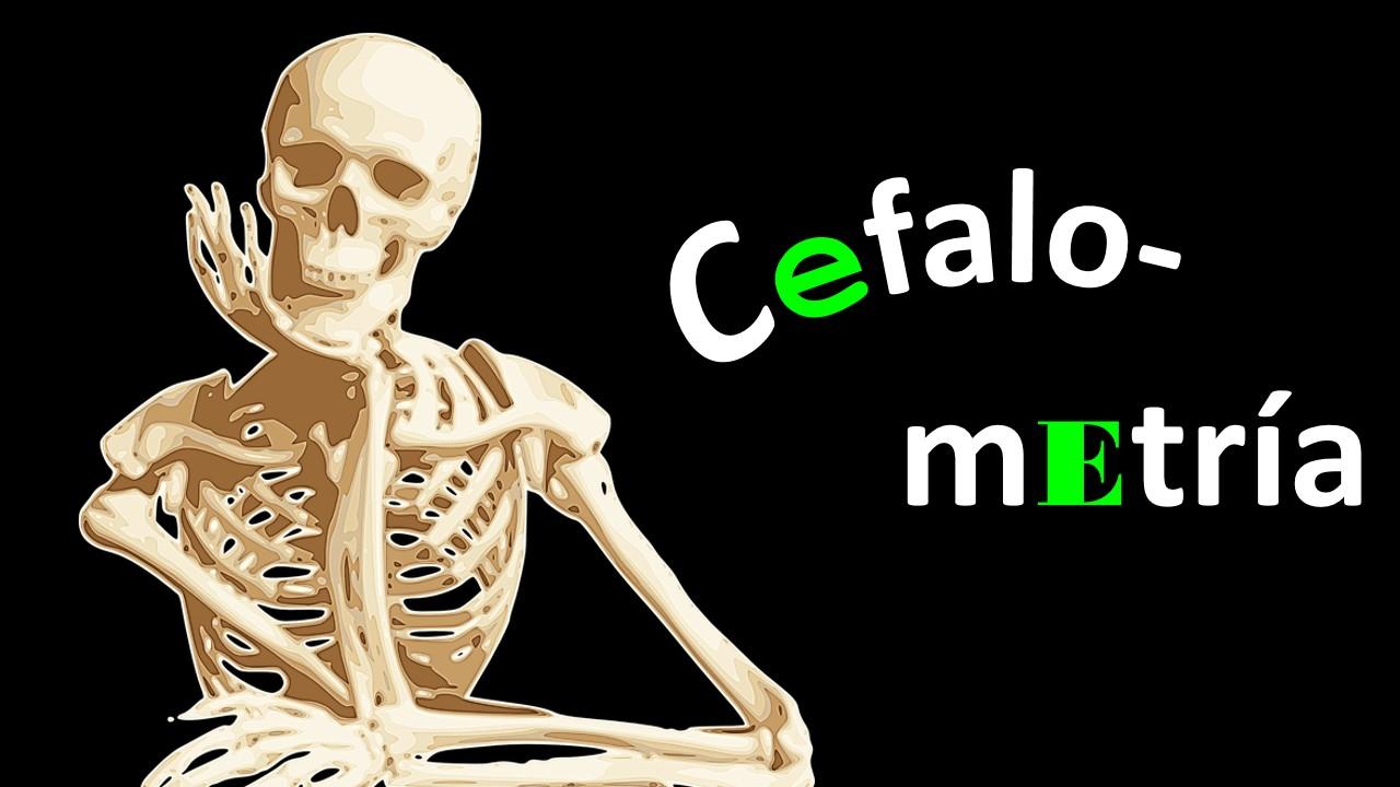 Cefalo