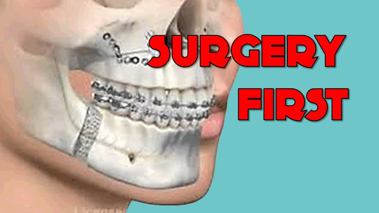 Surgery first