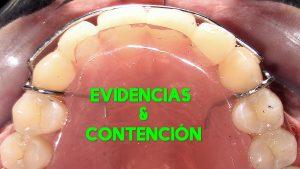 Contención en Ortodoncia. ¿Cuál es el mejor protocolo? Evidencias.