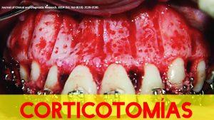 Corticotomías en Ortodoncia. ¿Habrá evidencias?