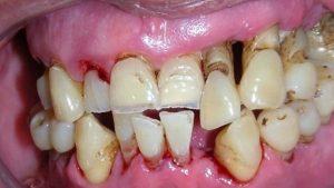¿Cómo trato con ortodoncia a un paciente periodontal? Evidencias.