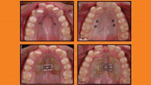 ¿Es mejor un disyuntor anclado a dientes o al hueso con microimplantes?