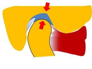 Evidencias sobre la discrepancia de la relación céntrica-posición intercuspal y su relación con los trastornos temporomandibulares