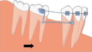 ¿Se puede dañar un molar al moverlo a mesial?