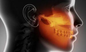 Desordenes temporomandibulares y oclusión… su relación sigue sin evidencia.